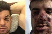 Zenitli futbolcu Denis Terentiev'e arabasının içinde saldırı!