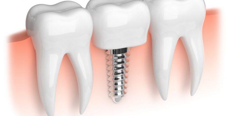 Diş Eti Hastalıkları ve İmplant Süreci